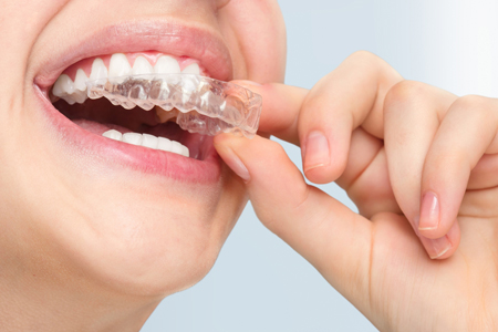 Orthodontic Treatment in Paschim ViharAt Sehgal dental clinic, your orthodontic treatment is all about you! It is our goal to create an environment where you are given individualized attention from specialists every step of the way. our specialist, a