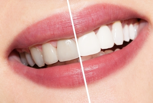 Teeth whitening services in Paschim Vihar